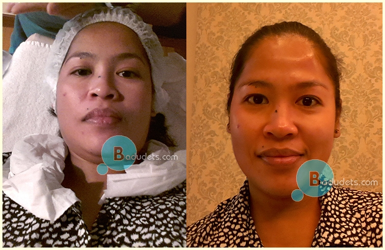 Resolift and Carboxy Gel Therapy at The Zen Institute