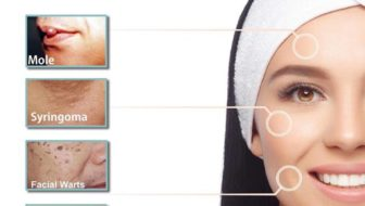 RCC Amazing Touch offers non-surgical and painless warts and mole treatment