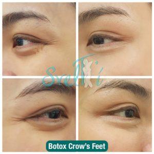 Botox Crow's Feet 2