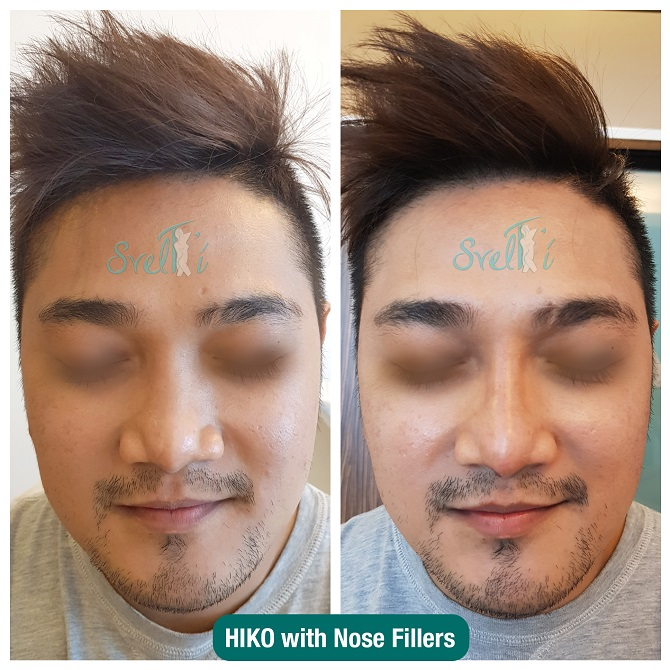 HIKO with Nose Fillers (1)
